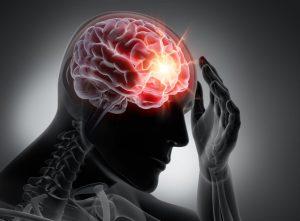 Ból głowy przy udarze mózgu jest powszechnym objawem.